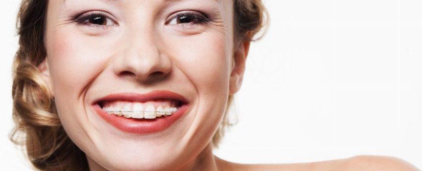 aparat ortodontyczny, ortodonta warszawa