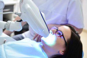 wybielanie beyond, stomatologia warszawa