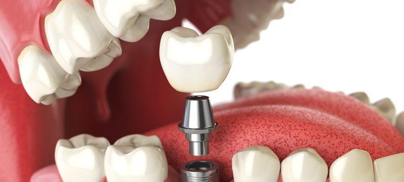 implanty zębowe, implanty warszawa