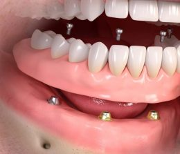implanty zębowe warszawa