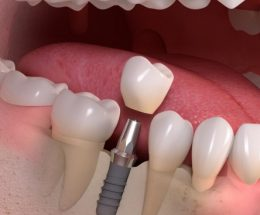 implant zębowy warszawa cena, tooth reconstruction