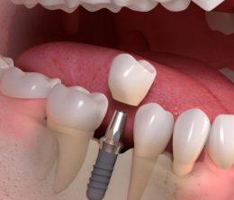 implant zębowy warszawa cena