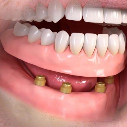 implanty warszawa, proteza na lokatorach