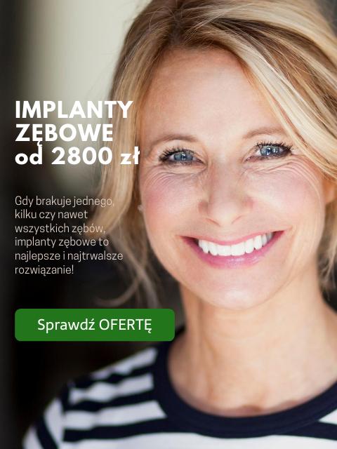 implanty zebowe warszawa